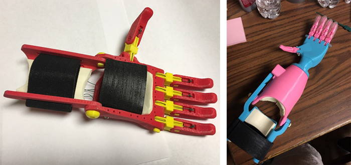 3d printed hand for kids born without one