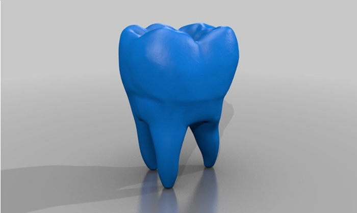 dental-3d-priniting